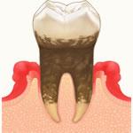 予防歯科・歯周病